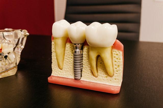 Ile kosztuje wstawienie implantu? Sprawdzamy ceny.